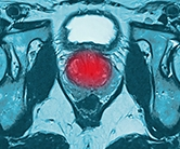 Invasive early prostate cancer treatments not always needed Logo